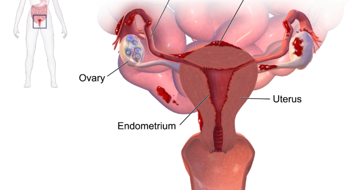 Endometriosis diagram